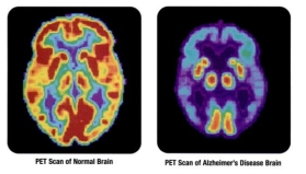 PET_scan-normal_brain-alzheimers_disease_brain_2