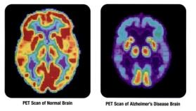 PET_scan-normal_brain-alzheimers_disease_brain_2